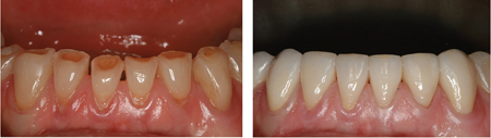 Severely worn lower anterior teeth with little to no over-eruption.