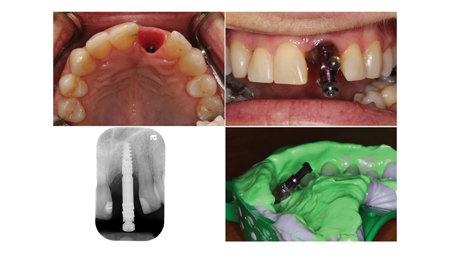 Final impression appointment for implant crown 21.