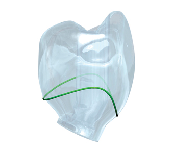 This translucent design of the final restoration highlights the contours of the definitive restoration relative to the soft tissue cuff (green line) and the position of the corrected access channel.