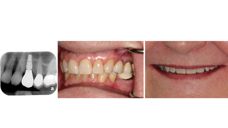 Radiographic and clinical appearance of the definitive, full contour ASC implant supported crown #24.