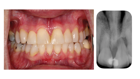 Severe circumferential bone loss affecting tooth 21.