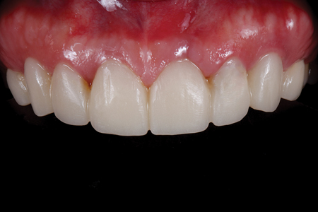 Intraoral view of provisionals.