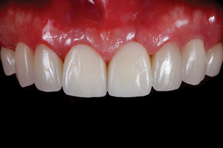Intraoral view of definitive restorations.