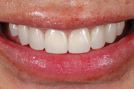Smile with definitive restorations.