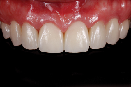 Intraoral view of definitive restorations at six months.