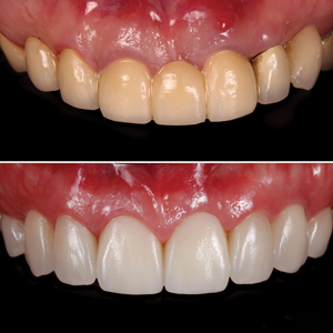 Before and after intraoral view.