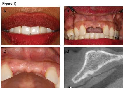 Intra-Oral Block