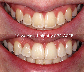 Tooth lightening using CPP-ACFP nightly for 10 weeks. No bleaching has been done. Note the improvement in the incisal edges.