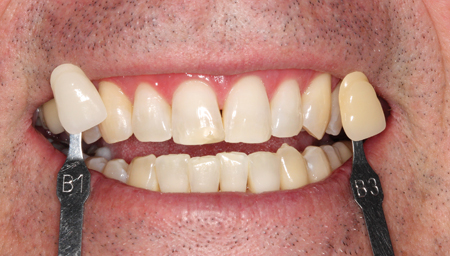 The same patient as Figure 6, immediately after in-office whitening, with some improvement in esthetics.