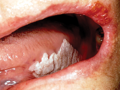 Leukoplakia of the left lateral tongue.