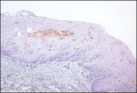 Psoriasin (S100A7) staining (shown as brown stain) in lesions seen clinically as leukoplakias. A: Low-risk lesion & B: High-risk lesion.