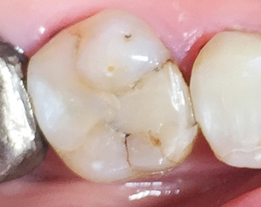 Four weeks after placement shows no staining of either the surrounding tooth or of the GIC, composite co-cure sandwich restoration.