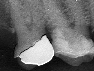 A radiograph demonstrates a further increase in radiopacity four weeks after initial placement of the GIC/composite restoration.