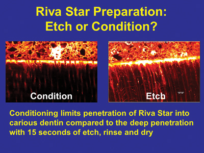 Comparison between etching and conditioning dentin prior to Riva Star application.