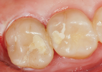 The restorations after 6 weeks. Observe no staining on either the teeth or the restorations.
