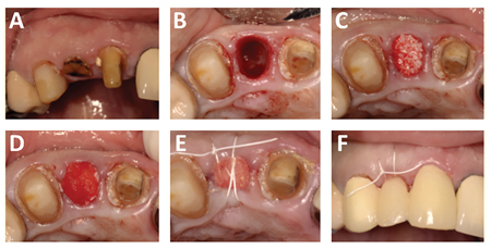 Tooth Extraction Bone Graft Healing Stages