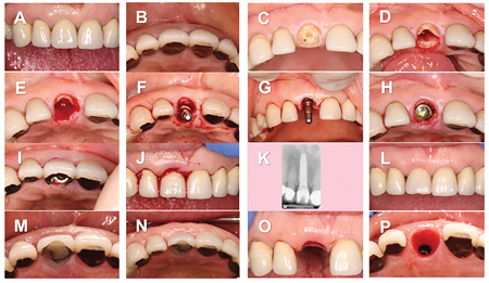 Partial Extraction Therapy (P.E.T.), AKA Socket Shield Technique was developed to mitigate the effects of the complete removal of the root of the tooth and the subsequent loss of the buccal plate of bone as a result of loss of blood supply through the periodontal ligament space.