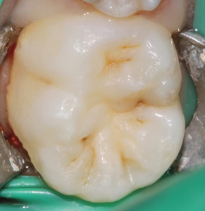 Pre-op occlusal view of mandibular arch.