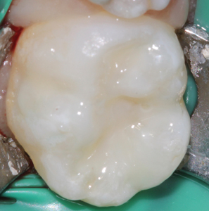 Bioactive ionic resin modified glass ionomer restoration post op.
