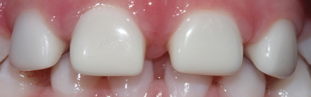 Zirconia prefabricated crowns post-op.