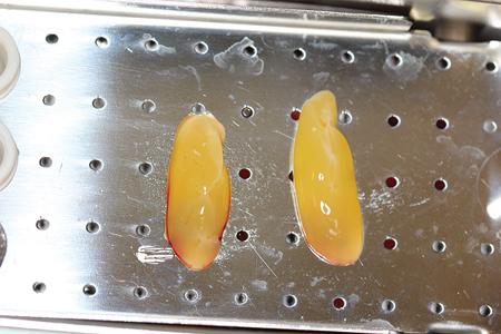 Platelet Rich Fibrin Clots.