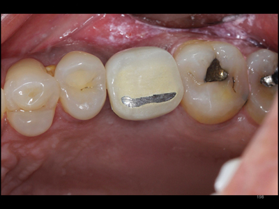 Slightly extruded crown – observe overcontoured embrassures and history of previous occlusal adjustments.