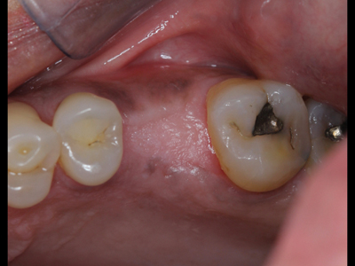 Well preserved site at four-month pre-implant assessment appointment (mirror image).