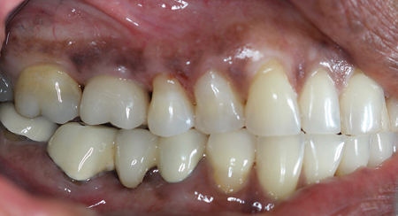 Buccal view of the final screw retained non-precious PFM implant crown.