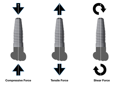 Illustration of forces transferred to an implant.