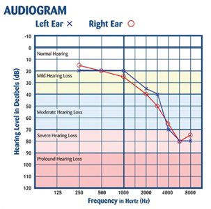 Typical hearing loss following long standing excessive noise exposure (Nationalhearingtest.org).