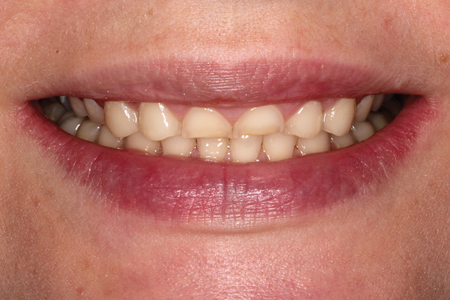 "Patient with worn dentition desiring a ""quick fix""."