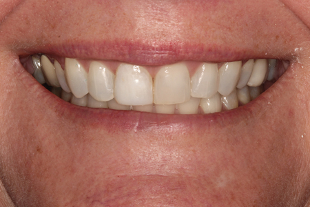 Full Smile View following orthodontic treatment. Smile Rejuvenation