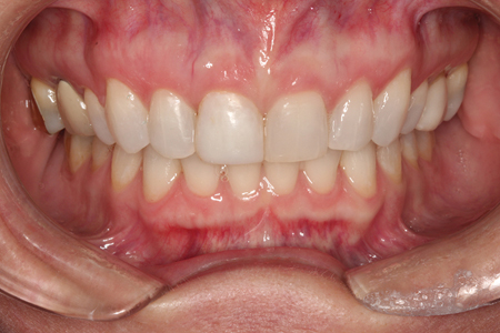 Retracted Smile View following orthodontic treatment. Smile Rejuvenation