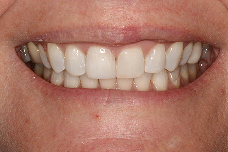 Tooth whitening performed.