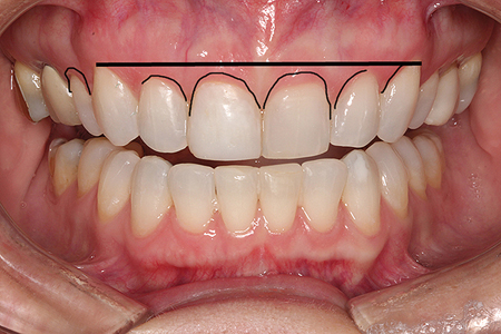 Photo with desired gingival contours.