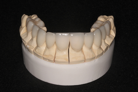 Prostheses from dental laboratory.