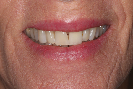 Close-up preoperative view of the patient's smile.