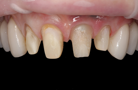 """The provisionals were removed; note that #9 is the custom """"H"""" abutment."""