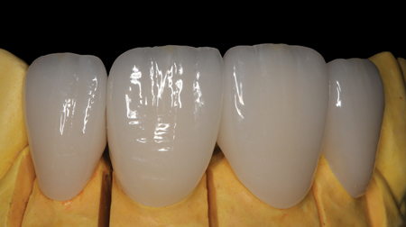 The marginal fit, contour, and incisal edge characteristics were evaluated with the definitive restorations on the master model.