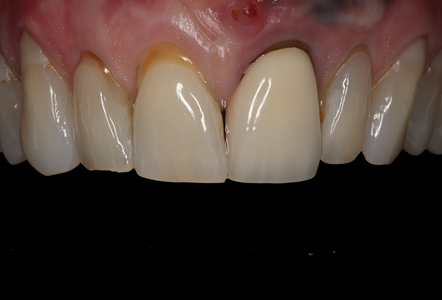 Close-up retracted view of the patient's maxillary anterior teeth revealing the unaesthetic gingival tissue surrounding the PFM restoration on tooth #9.