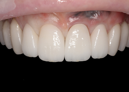All four restorations were tried in without try-in gel to verify complete seating.