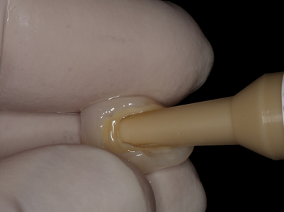 The restorations for #9 and #10 were evaluated using a warmer try-in gel.
