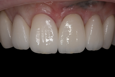 The patient preferred the translucent shade (i.e., #7 and #8), rather than the warmer shade (i.e., #9 and #10).
