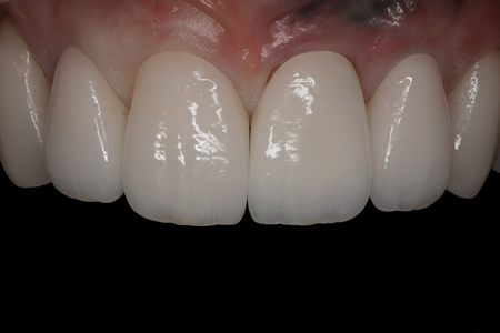 The restorations for #9 and #10 were then reseated intraorally to evaluate the effect of the higher-value try-in gel.