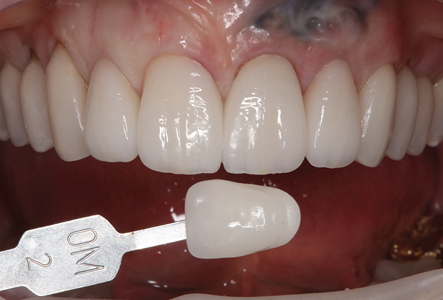 The seated restoration shade was compared to the shade tab chosen at the preparation appointment.
