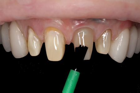 Multiple coats of a universal dental adhesive were then dispensed and applied to the preparations and abutment.
