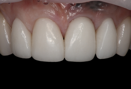 View of the PMMA provisional restoration five weeks after the extraction of tooth #9 and bone graft and implant placement.
