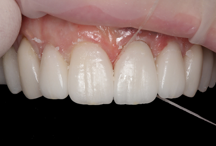 Dental floss was used interproximally to gently remove additional excess cement.