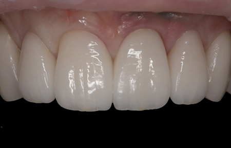 """Immediate postoperative view of the maxillary anterior smile as redesigned with four lithium disilicate restorations, an implant, and a custom """"H"""" abutment."""