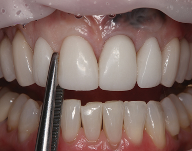After four months of healing, the provisional restorations were removed using a hemostat.